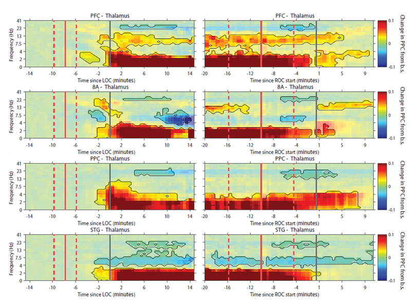 images of brain waves under varying effects of anesthesia