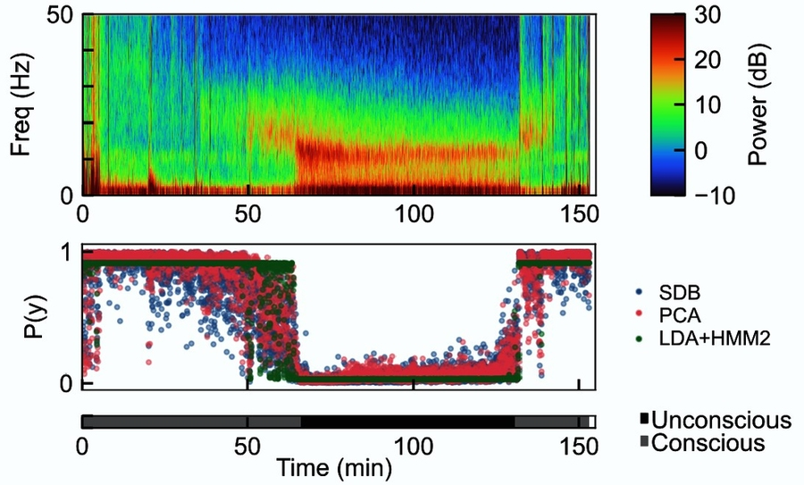 Researchers trained algorithms to make predictions about whether a patient was unconscious based on EEG readings of brain rhythms. Rhythms from a volunteer over time are shown in the spectrogram at the top. The predictions of three algorithms are shown as the height of dots in the rectangle on the bottom. They were very accurate in assessing the probability of unconsciousness, the data show.